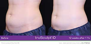 truSculpt Before/After